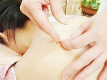 鍼灸治療、指圧、マッサージ、リハビリ、テルミ―など幅広い技術を取り入れています。
