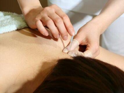 「鍼免許があるのに活躍の場がない・・・」ラポールでは鍼を通じて、患者様の健康に貢献できる環境があります
