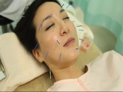 【川崎で開業25年】6割が鍼灸患者で経験が積める!指圧や美容鍼など様々な治療技術が学べます♪未経験の方や学生も大歓迎!